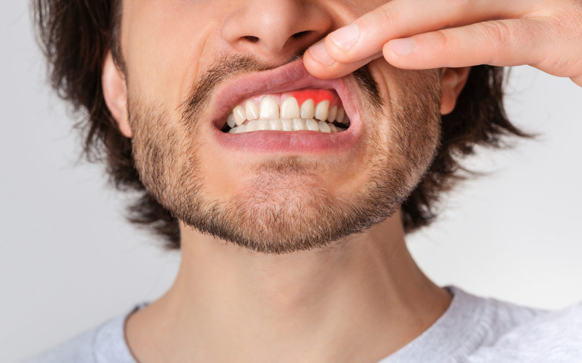 Man holding up lip revealing gum disease